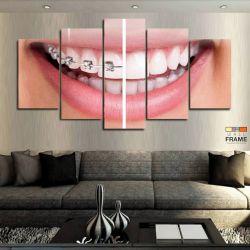 Quadro Decorativo Dentista Aparelho 63x130 cm com 5 peças